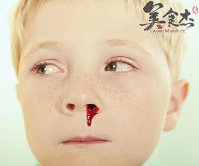 9大诀窍巧治孩子流鼻血_学龄期儿童 - 美食杰