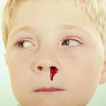 9大诀窍巧治孩子流鼻血