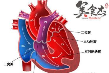 心脏血管前降支_心脏冠状动脉前降支图图片展示_心脏冠状动脉前降支图相关图片 ...